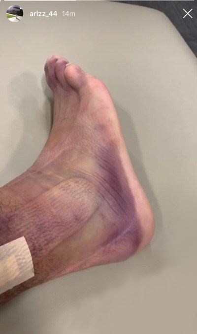 Rizzo's ankle